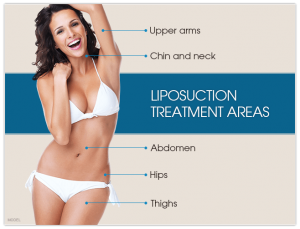 liposuction graphic 300x229 - Lipo360 now offered by Baltimore Plastic and Cosmetic Surgery Center