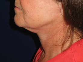 Baltimore neck lift