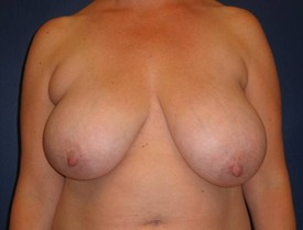 baltimore breast reduction and liposuction
