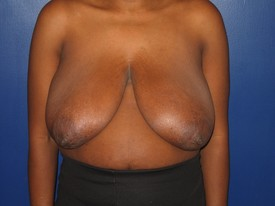 baltimore breast reduction