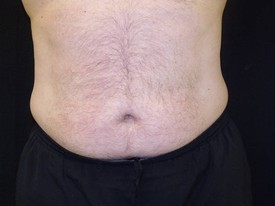 Baltimore-Coolsculpting