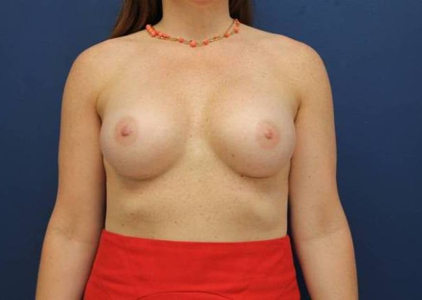 Baltimore-breast-enhancement