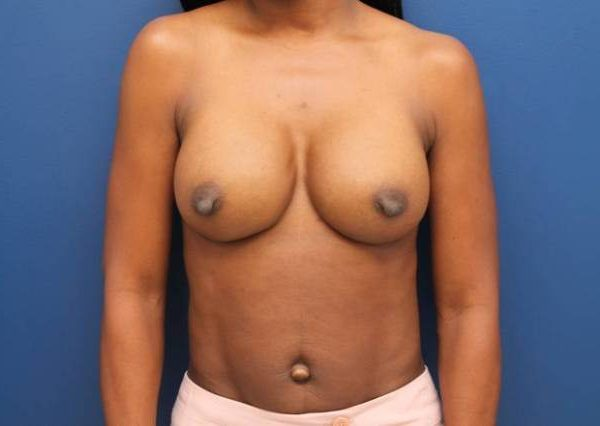 Baltimore-breast-implants