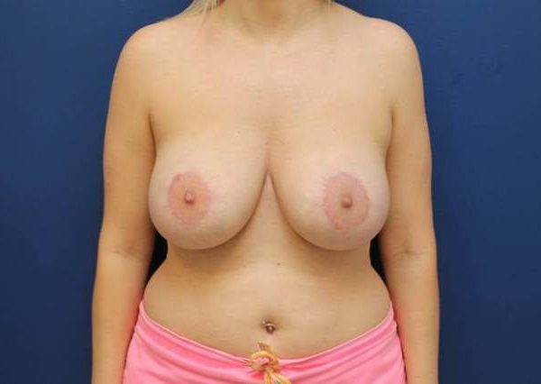 Baltimore-breast-lift-with-implants