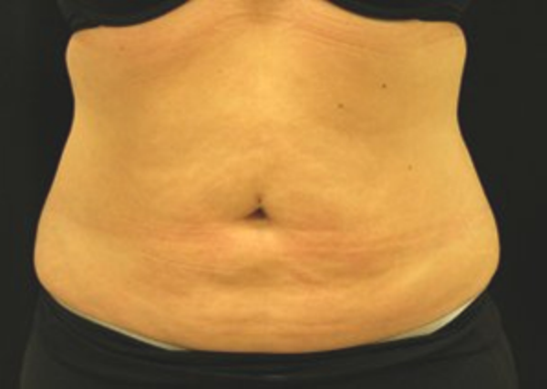Baltimore-coolsculpting-side