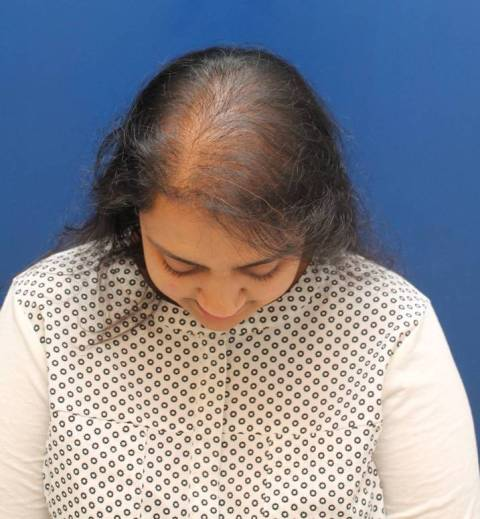 Baltimore-female-hair-transplant