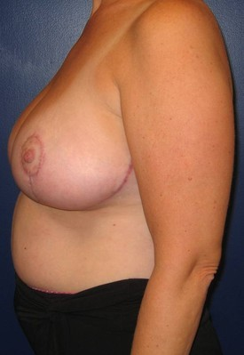 breast-lift-front