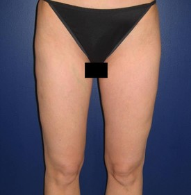 Liposuction-Hips-and-Legs