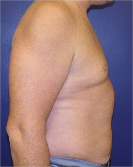 Maryland-gynecomastia-correction-