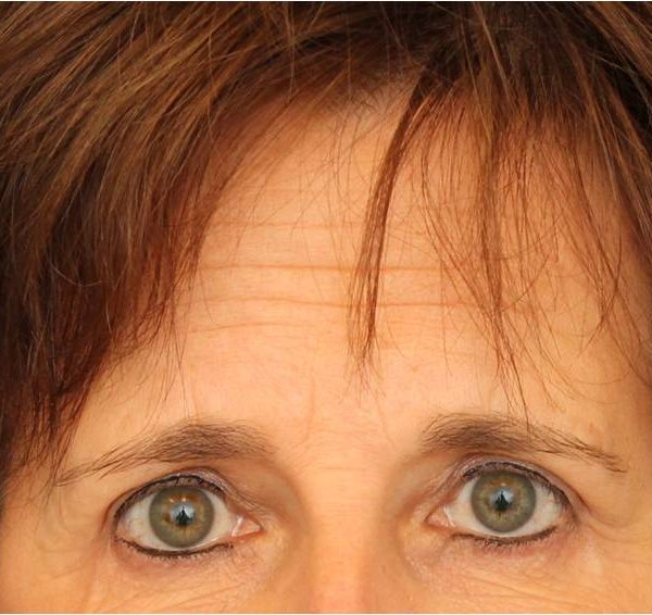 baltimore eyelid surgery