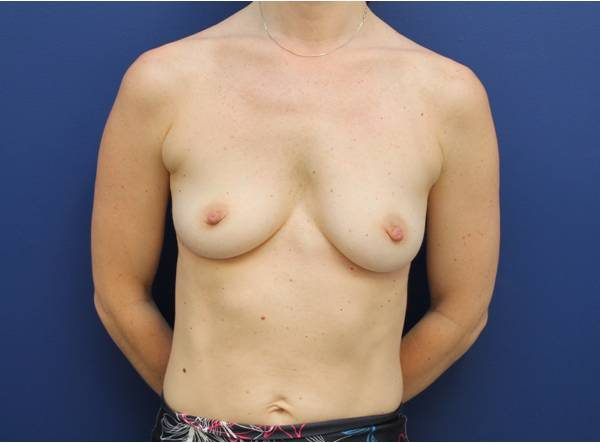 best breast augmentation baltimore
