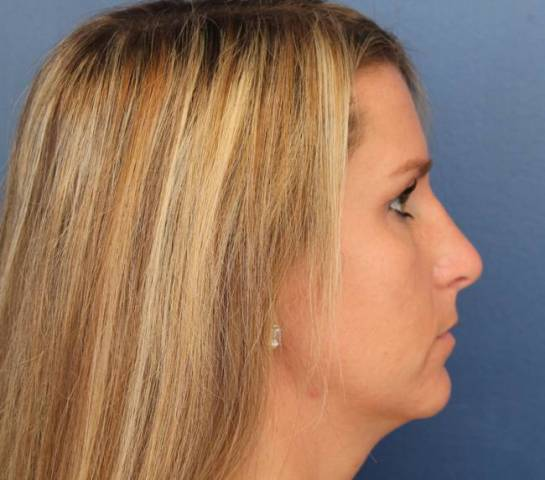 Baltimore-Rhinoplasty