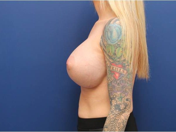 Baltimore breast implants