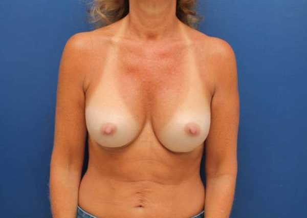 Baltimore-breast-augmentation
