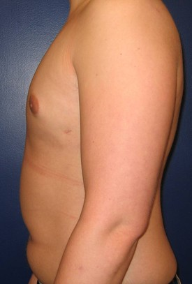 Baltimore-gynecomastia-correction