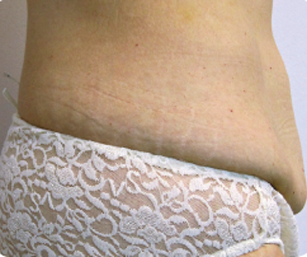 baltimore tummy tuck