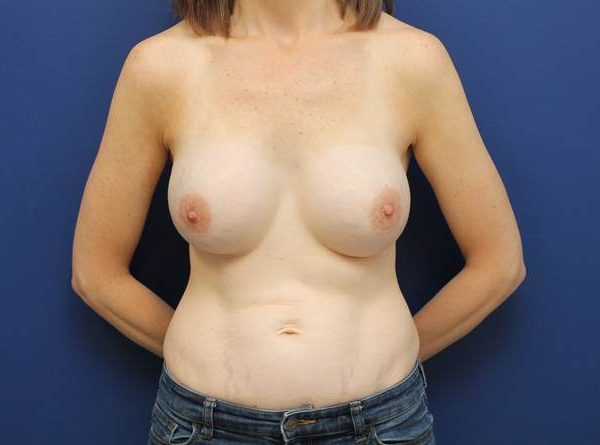 best breast augmentation baltimore md