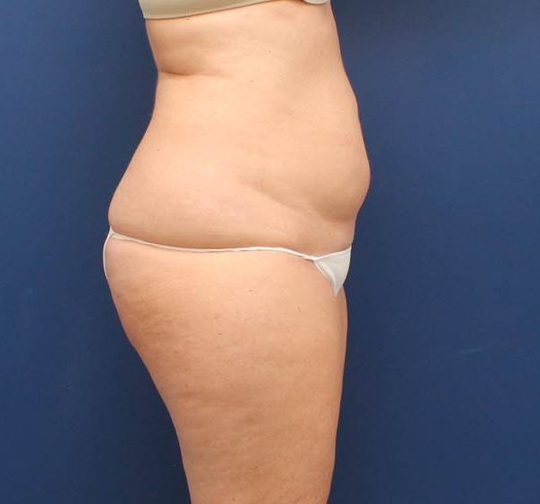 tummy tuck baltimore