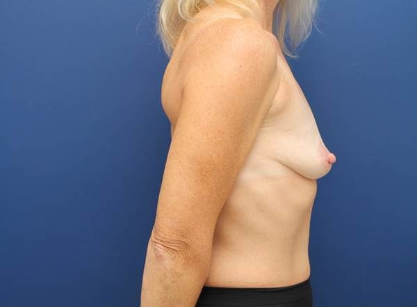 maryland breast augmentation