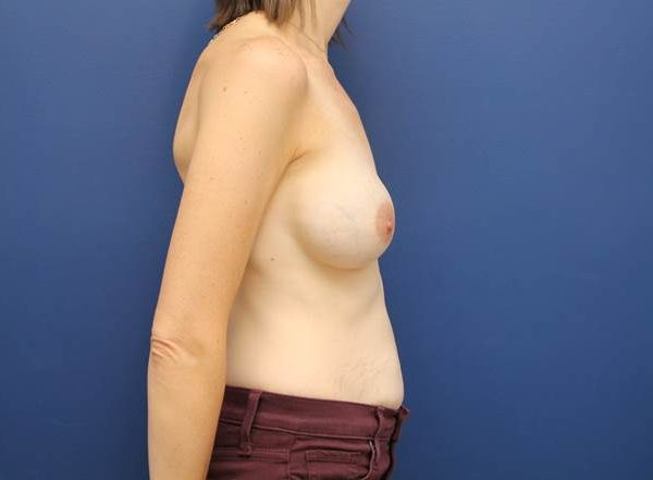 Breast augmentation baltimore md