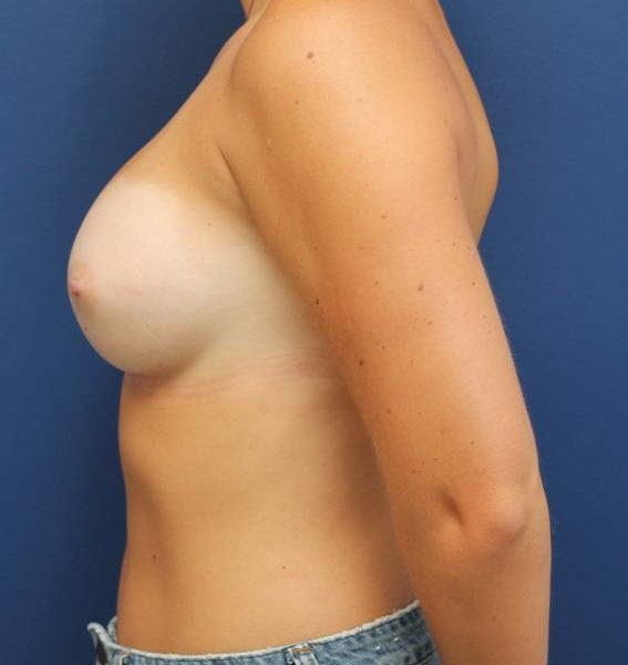 best breast augmentation maryland